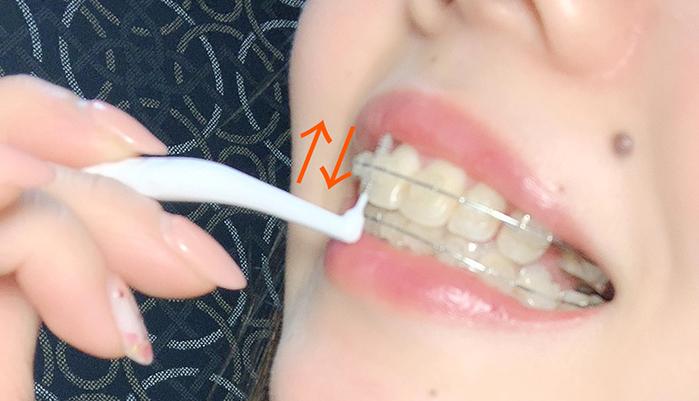矯正 歯間ブラシの仕方