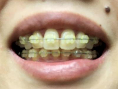 歯列矯正カレー食後