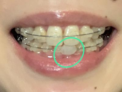 歯列矯正ワックス装着