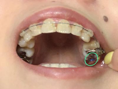 歯列矯正 青ゴム