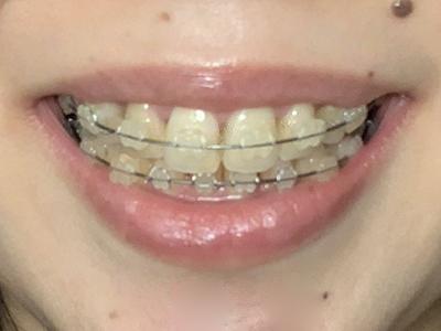歯列矯正 1年弱