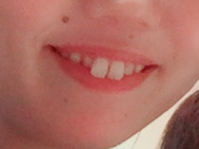 歯列矯正前2017